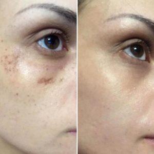 Manchas en la piel: Antes y después