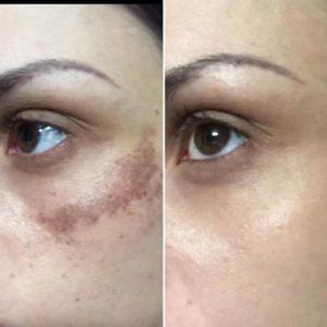 Manchas en la piel- Antes y después